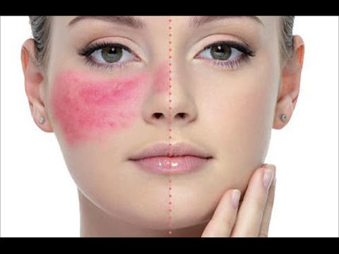 Video 8 Dermatologist Skincare Tips For Rosacea + Product Recommendations