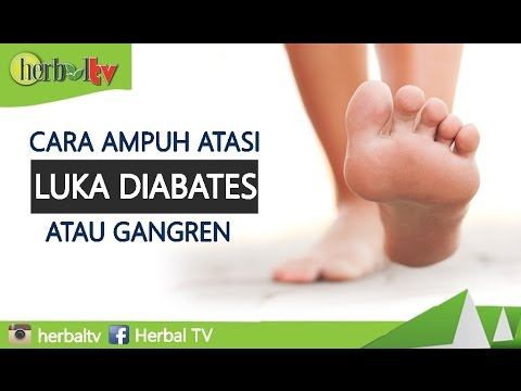 Video Tips Cara Mengatasi Luka Diabetes / Gangren Paling Ampuh