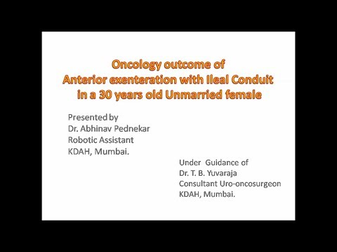 Oncology outcome of Anterior exenteration with Ileal Conduit in a 30 year old Woman