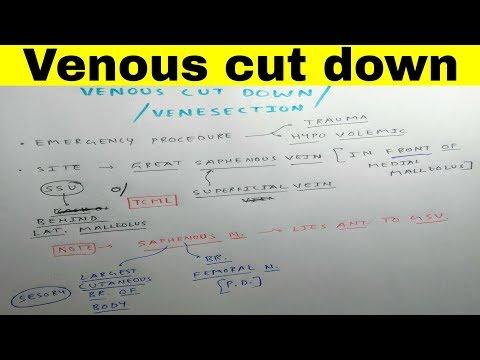 Simptome varicoză ca facilitate