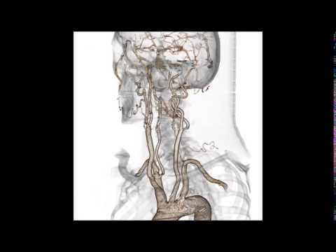 Pourquoi fait mal le pied après léloignement des veines