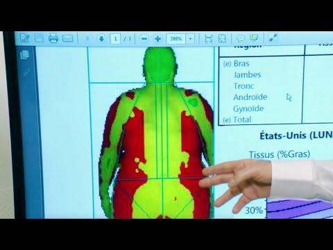 Comment perdre votre graisse mammaire