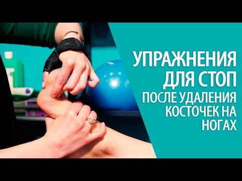 Jak leczyć guzek na kciuku nóg at home