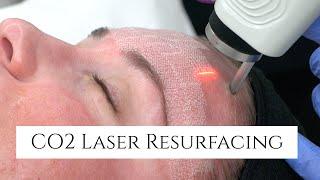 CO2 Laser Facial Rejuvenation | Fix Fine Lines and Wrinkles | Fix Sun Damage | Fix Stretch Marks