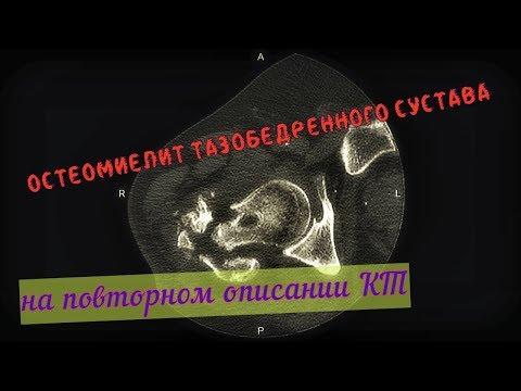 Bacterial prostatitis psa