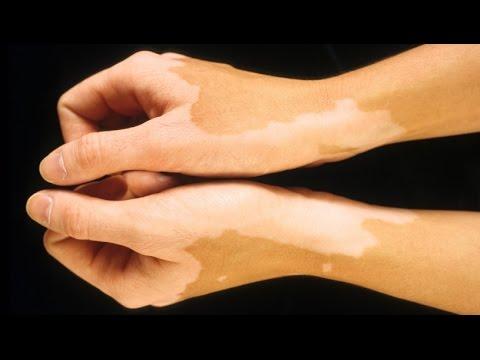 Atopitscheski die Hautentzündung nach dem Typ diffus nejrodermita