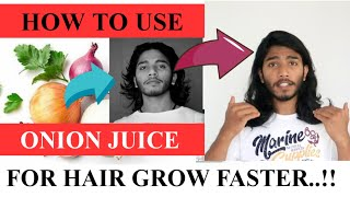 Benefits Of Onion Juice For Hair Growth മുടിയുടെ എല്ലാ പ്രശ്നങ്ങൾക്കും ഇനി സവോള എങ്ങനെ ഉപയോഗിക്കണം.?