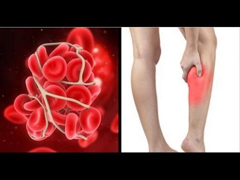Video These Are The Symptoms and Signs You May Have a Blood Clot in Your Leg