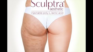 sculptra hips before and after - Free Online Videos Best Movies TV