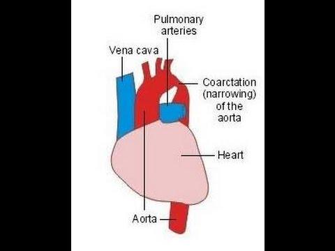Hipertensos criterios y tratamiento de crisis
