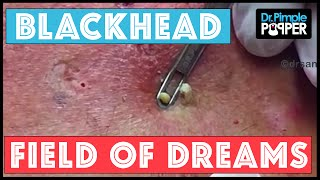 Blackhead Field of Dreams: Supercomedones & Dilated Pores of Winer
