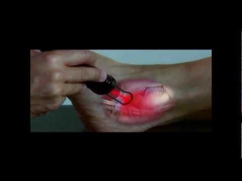 Ginnastica di riabilitazione in osteocondrosi