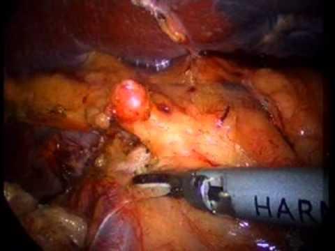 Laparoscopic Splenectomy for Vascular Splenic Mass