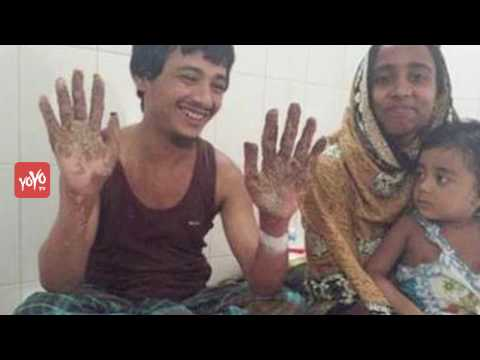 Video Tree Man of Bangladesh Cured After Undergoing 16 Surgeries | YOYO TV English