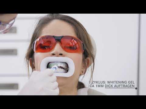 Wie funktioniert ein Bleaching (professionelle Zahnaufhellung) Schritt für Schritt!
