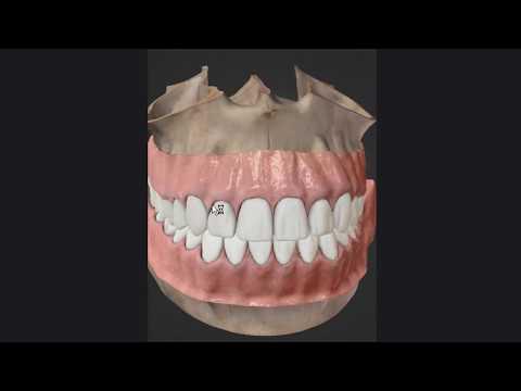 Общая и частная анатомия зубов