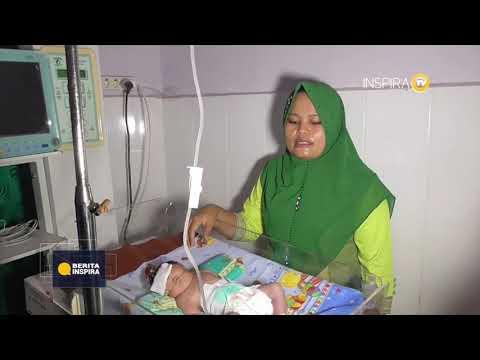 BERITA INSPIRA - Bayi Lahir dengan Kondisi Mata Satu di Kening