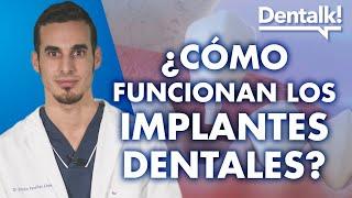 Cómo funcionan los implantes dentales – Dentalk! ©