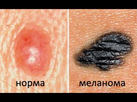 Как распространяются метастазы при раке (на примере меланомы)?