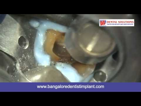 Educational Video about Laser Root Canal Treatment in India