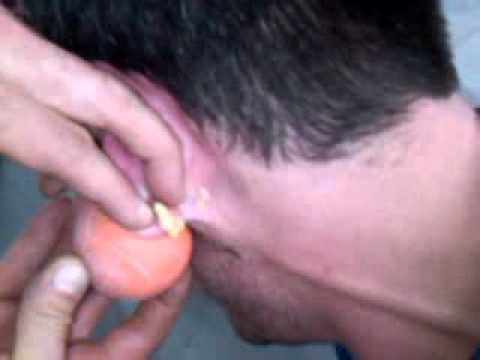 Nasty Ear Pimple