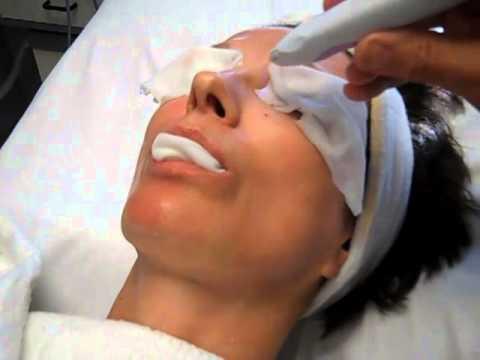 Portrait Plasma Skin Resurfacing