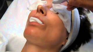 Portrait Plasma Skin Resurfacing