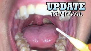 Tonsil Stones!  How To Make Your Mouth Happy!