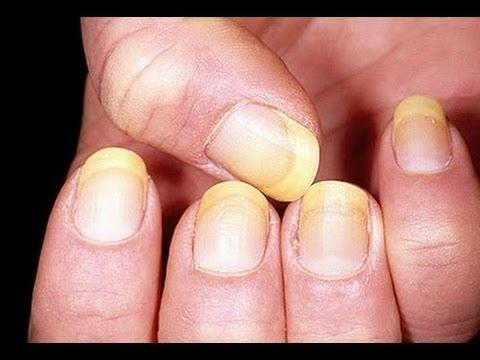La celidonia mayor ayuda del hongo de las uñas en los pies