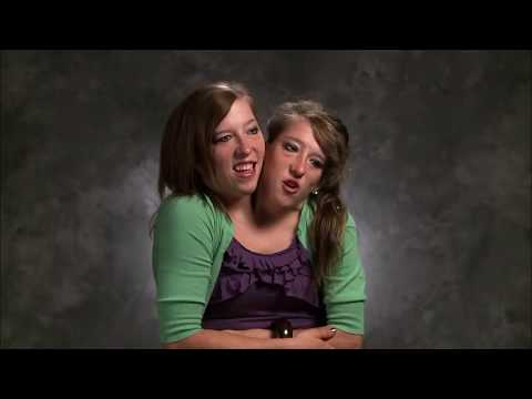Abby and Brittany Hensel: Conjoined Spring Break