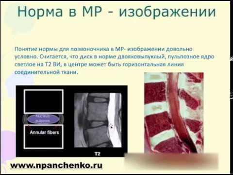 Диклофенак и мильгамма при шейном остеохондрозе