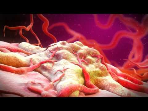 Massaggio prostatico fibrosi