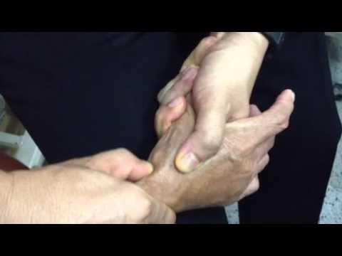 กระดูกนิ้วหัวแม่มือผิดปกติ