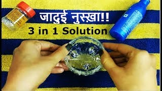 How to get Rid of Ringworm, Scar & Dandruff | 3 in 1 Solution | जादुई रामबाण नुक्शे
