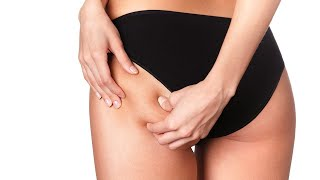 What Areas Can Be Liposuctioned? | Plastic Surgery
