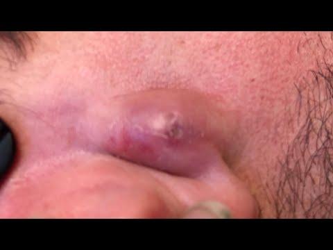 Papilloma vírus és nemi herpesz