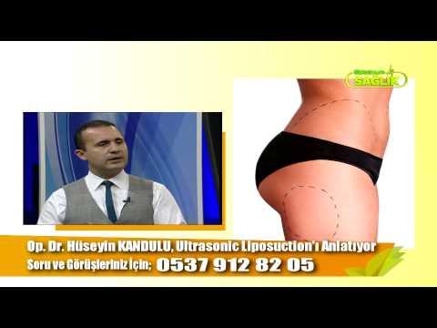 Op. Dr. Hüseyin Kandulu/ Maksimum Sağlık- Ultrasonic Liposuction