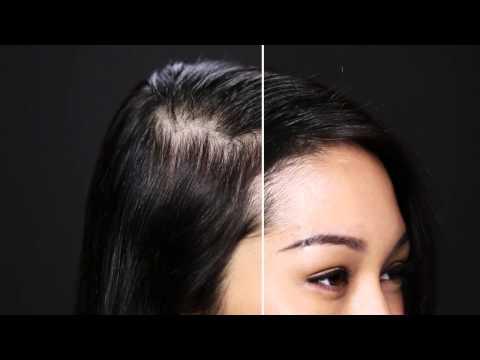 Der starke Haarausfall der Haarausfall