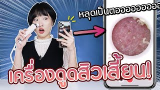 Soft Review: Blackhead Remover with Camera! 【Xiaomi Good Time】