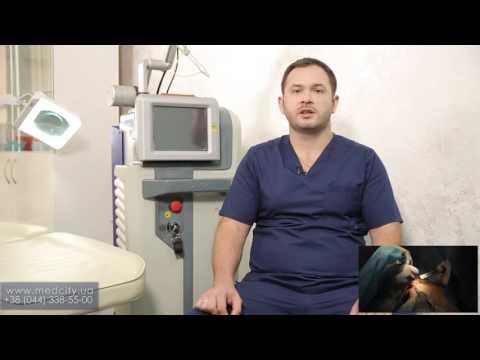 Лечение гинекомастии лазером
