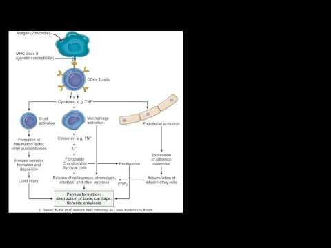 A glükózamin és a kondroitin előnyei vannak a testnek