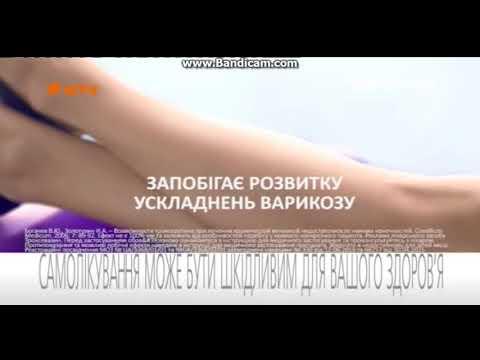 Polsini su una gamba da varicosity