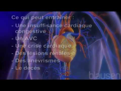 La tension artérielle le matin et la nuit