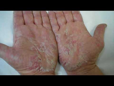 Флюид для коррекции пигментации кожи spf 30