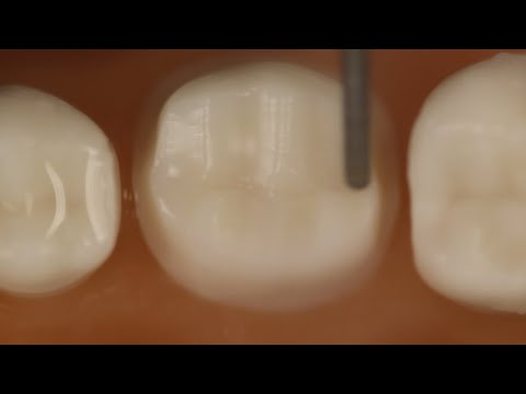 PFM Crown Posterior Tooth Preparation With Metal Occlusal