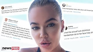 Khloe Kardashian SHUTS DOWN IG Comments About Her Large Lips!