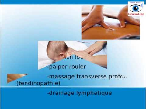 Kenalog 40 instruction pour lapplication au psoriasis