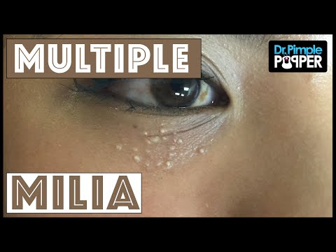 Video Multiple milia under the eyes