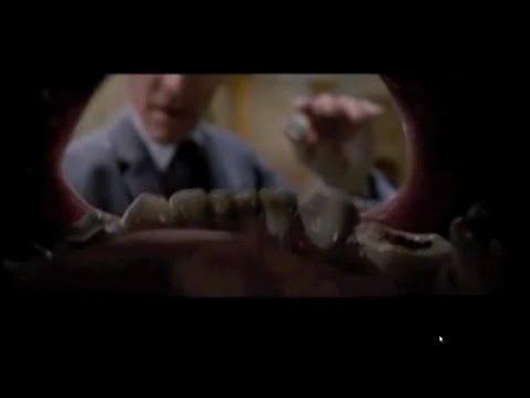 Miozit reparto lombare di sintomi di spina dorsale e un trattamento