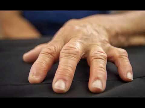 Боль в паху при артрозе тазобедренного сустава